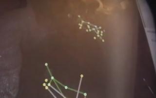 Kinect Anomaly